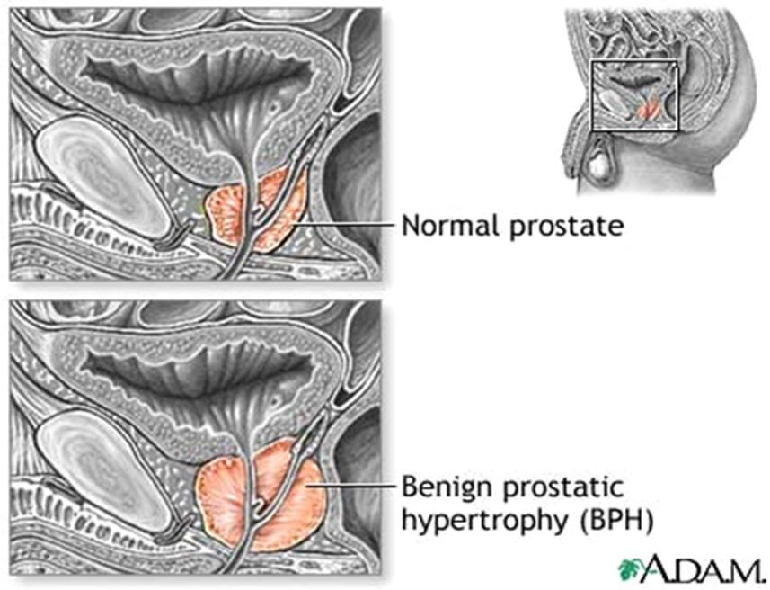 prostate4